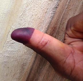 投票した人は・・・