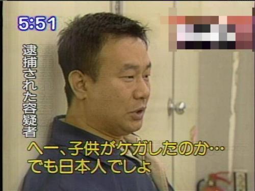 どうせ日本人 子供が怪我