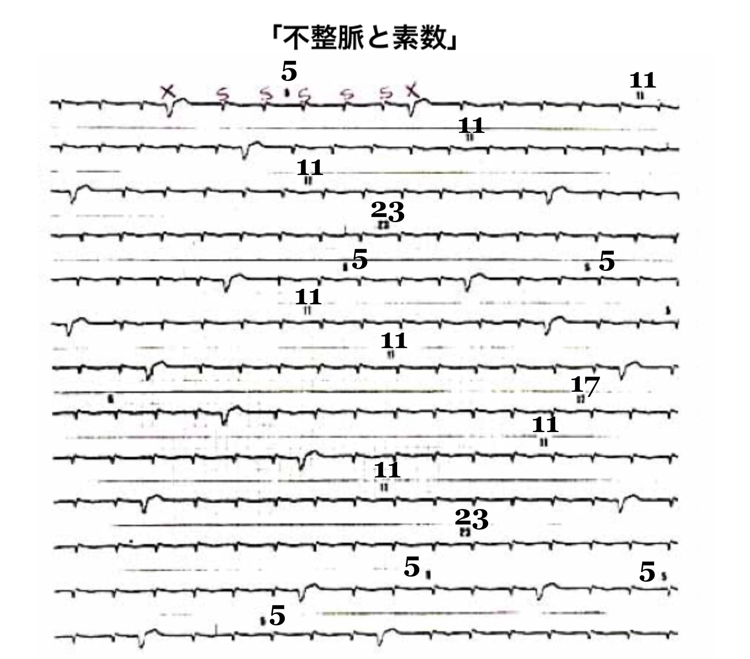 図_不整脈心電図