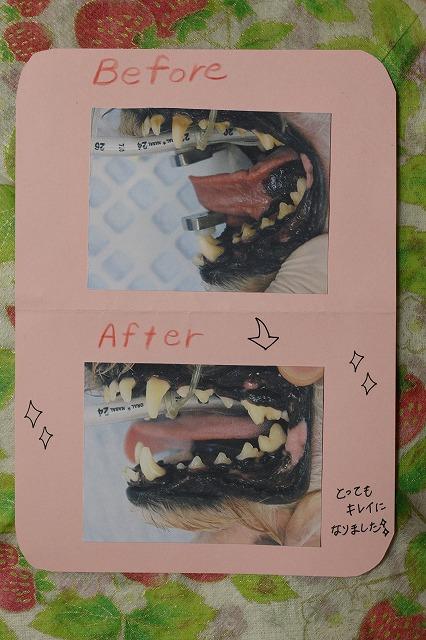胡桃の歯 002