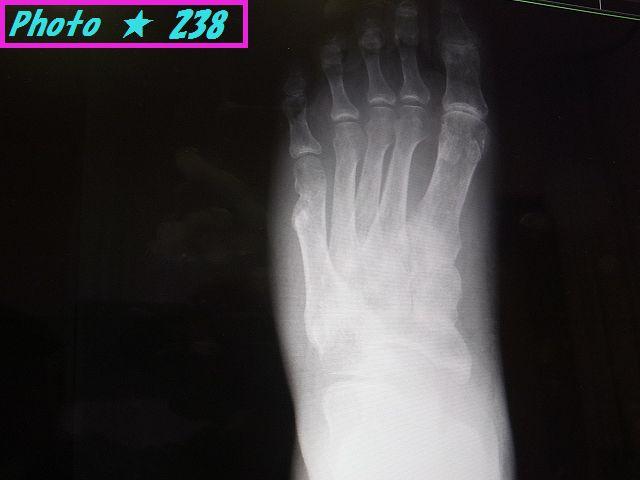 骨折跡のレントゲン①