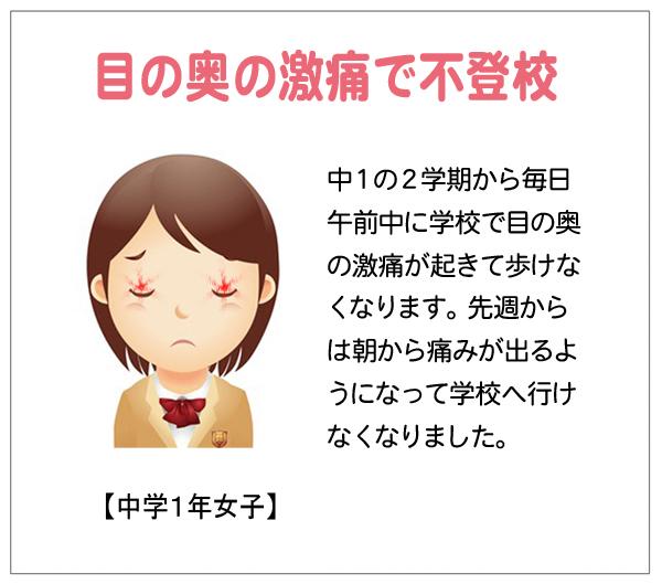 眼の奥激痛15-02-28