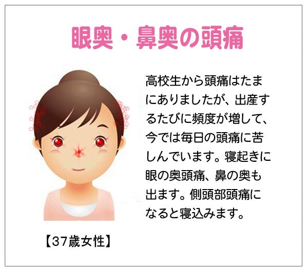 目奥鼻奥15-01-15