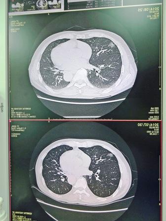 CT画像2枚DSC01759