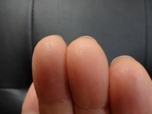 右指の爪の長さ-2015・6