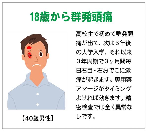 群発期の激痛が15-04-30