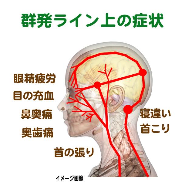 群発ライン上の症状