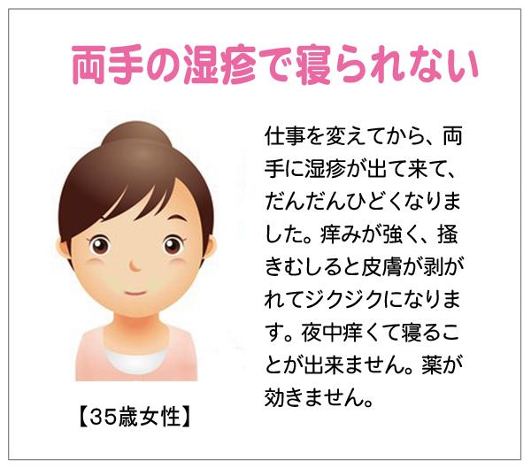 両手の湿疹10-06-26